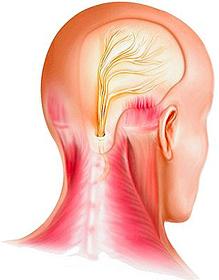 traitement de la névralgie d'arnold par l'ostéopathie à marseille