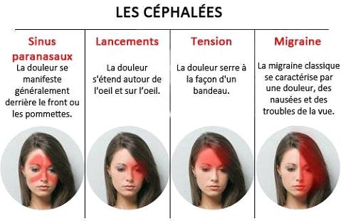 Types de céphalées